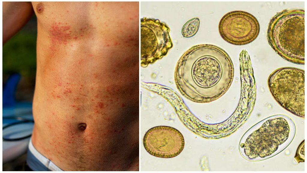 паразиты вызывающие аллергию