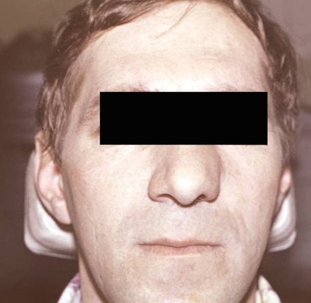 Рак носа: симптомы, лечение, прогноз