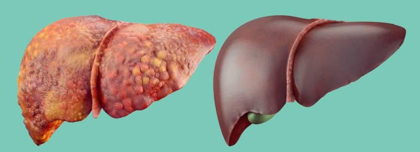 Эффективное восстановление печени после антибиотиков: методы лечения