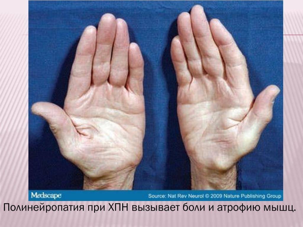 Сенсорная полинейропатия нижних конечностей