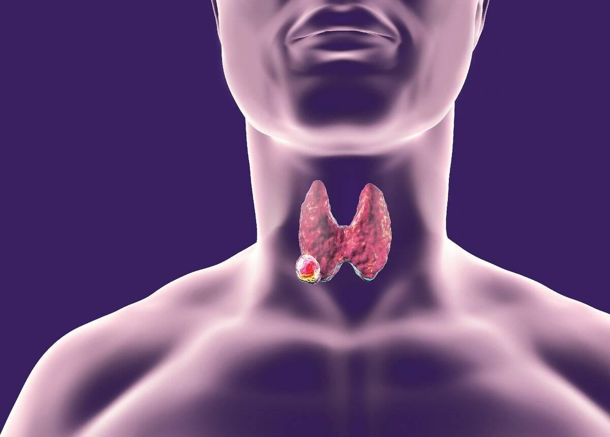 щитовидная железа и псориаз