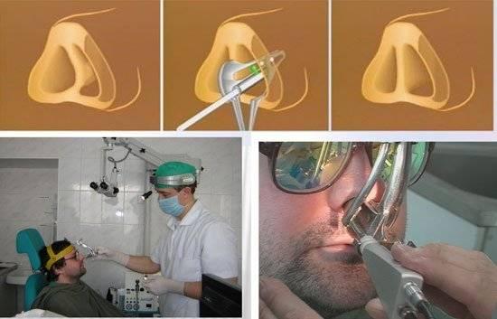 выпрямление носа без операции