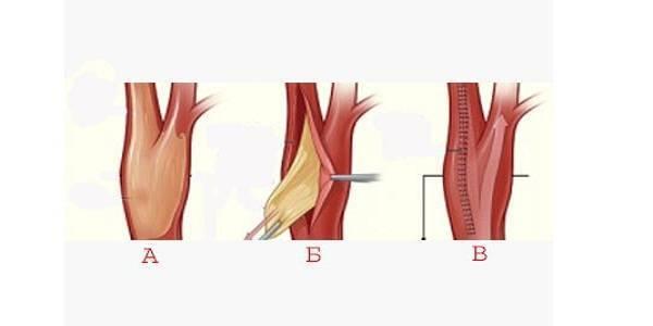 Эндартерэктомия: операция по удалению бляшек сосудов