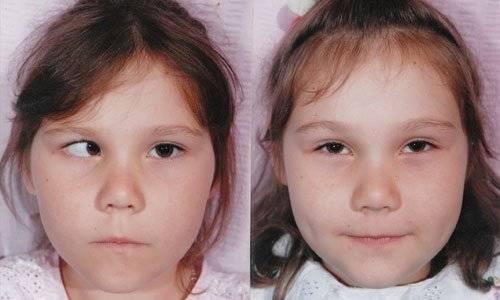 Косоглазие – хирургическое вмешательство