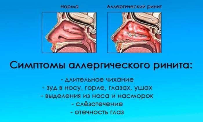 воспаление слизистой носа симптомы