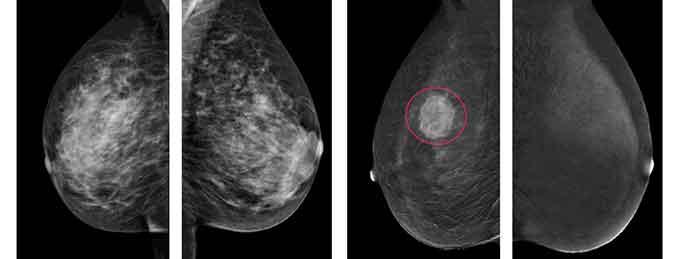 что лучше сделать узи молочных желез или маммографию