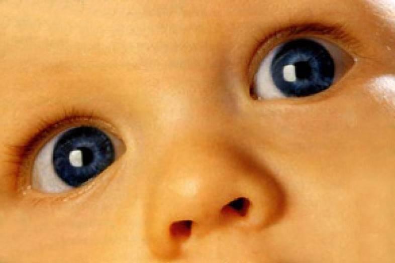 Когда проходит косоглазие у новорожденных: причины, лечение