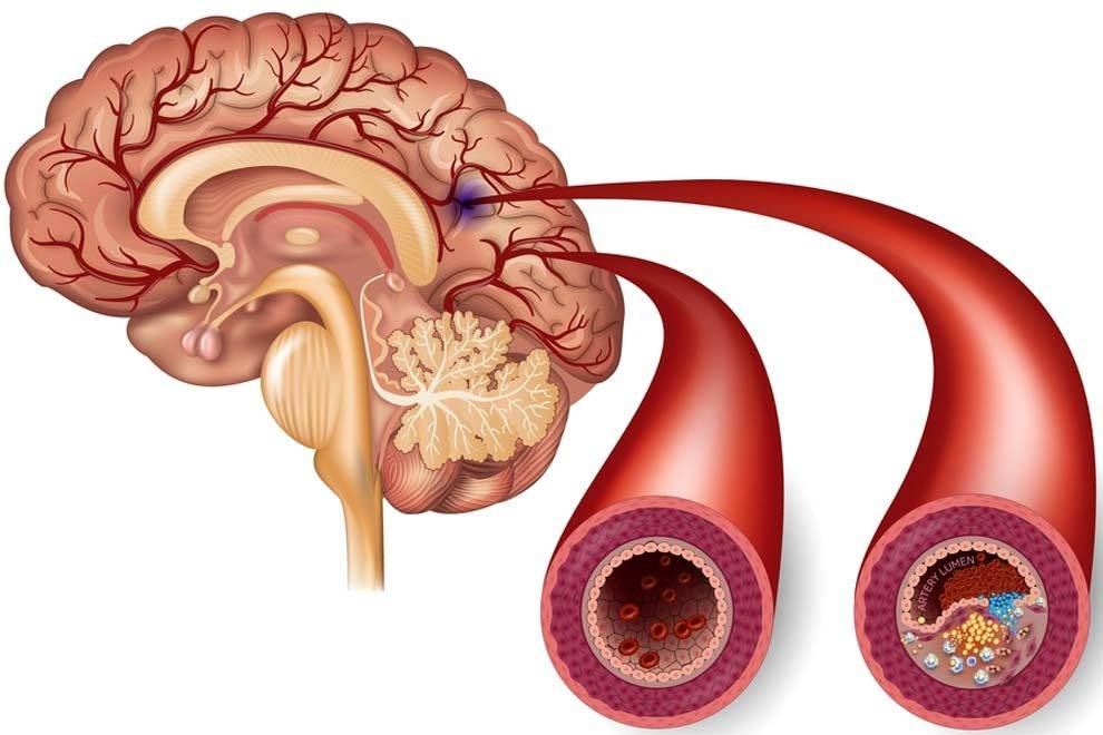 Почему возникает атеросклероз сосудов головного мозга и можно ли вылечить это заболевание