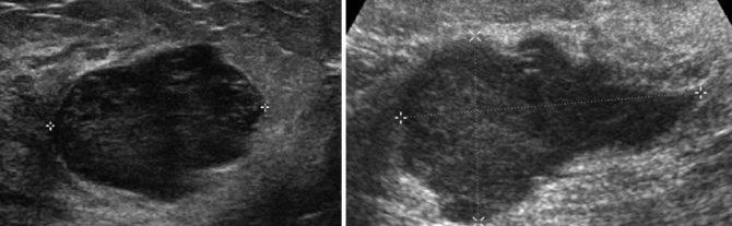 Фиброаденома молочной железы при беременности