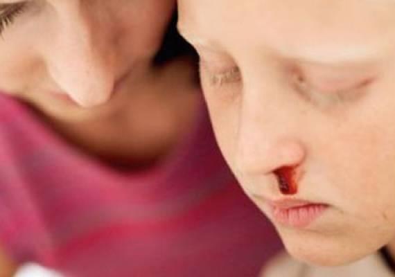 Почему из носа идет кровь причины у взрослых утром