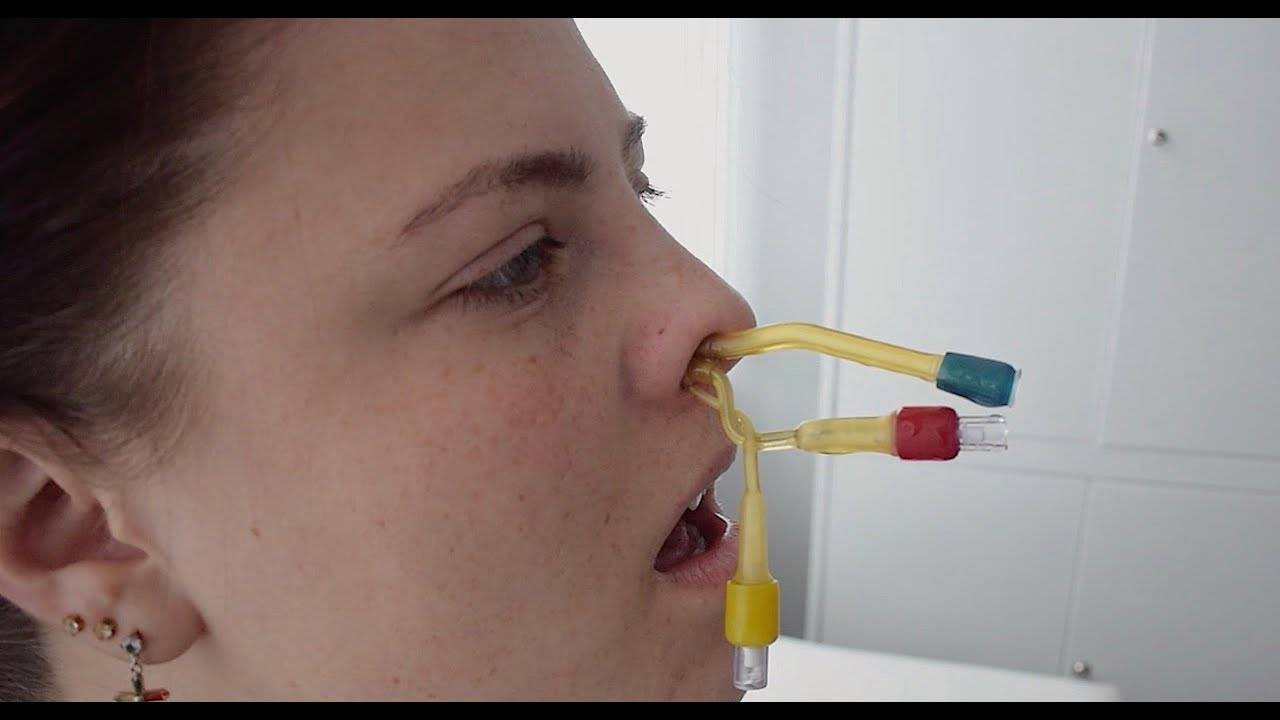 Синус-катетер ямик – процедура для лечения гайморита