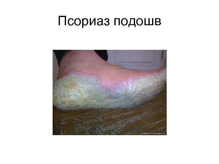 Об этиологии и патогенезе псориаза « псориаз? давайте лечиться вместе.