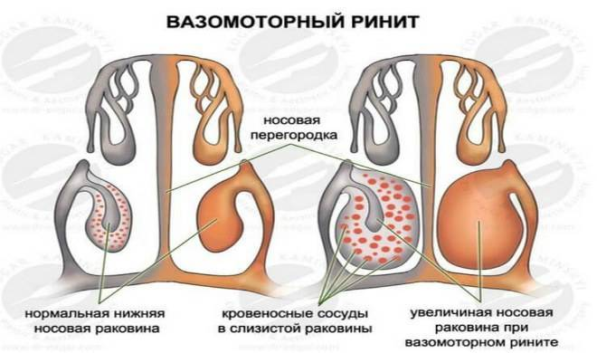 Вазомоторный ринит — симптомы и лечение у взрослых и детей