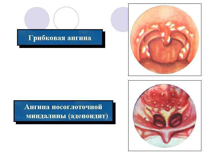 Причины, симптомы и лечение грибковой ангины