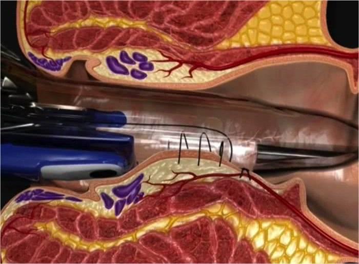 трансанальная дезартеризация геморроидальных узлов