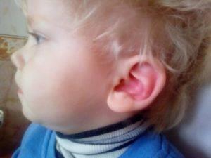 Гиперемия уха у детей. почему у ребенка красное ухо снаружи и внутри