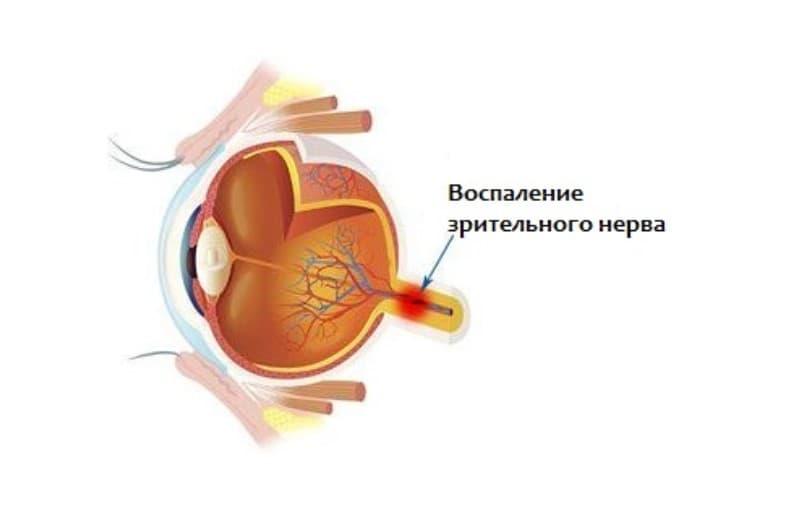 Диагностика и лечение ретробульбарного неврита зрительного нерва