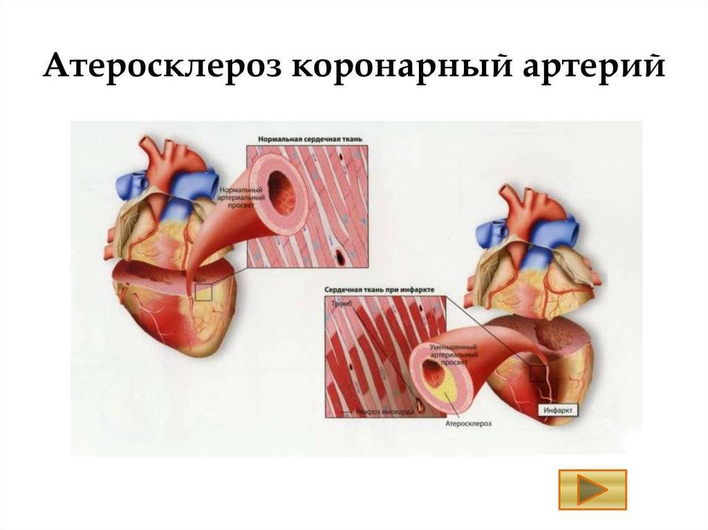 Атеросклероз аорты коронарных артерий - что это такое, причины, симптомы, лечение