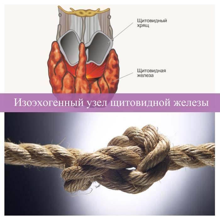 Узлы на щитовидной железе - чем опасны