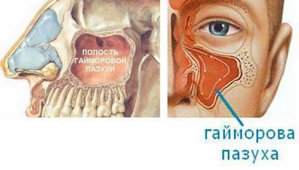 Клиническая анатомия носа и околоносовых пазух