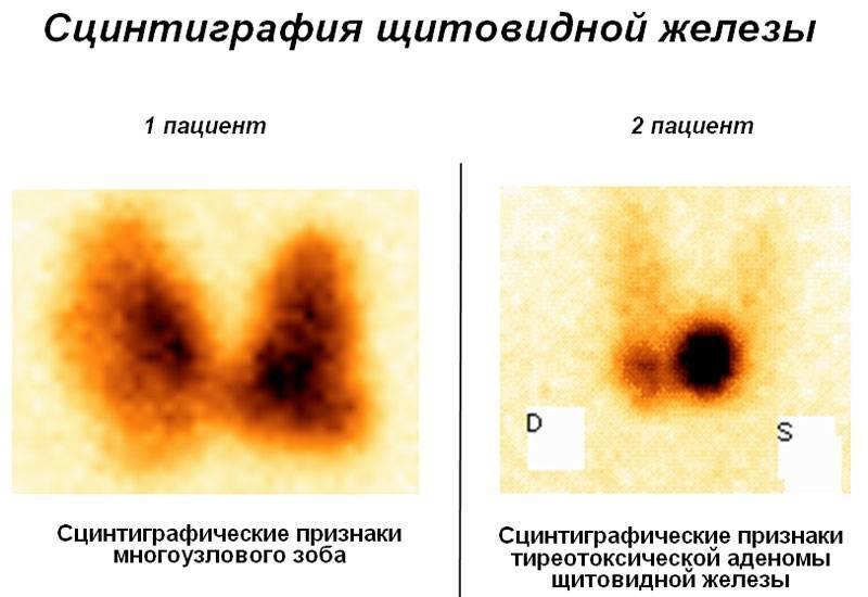 Радиоизотопное сканирование при раке щитовидной железы
