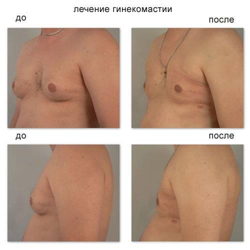 Гинекомастия - оперативное лечение гинекомастии