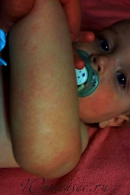 Аллергический дерматит лечение у детей комаровский видео