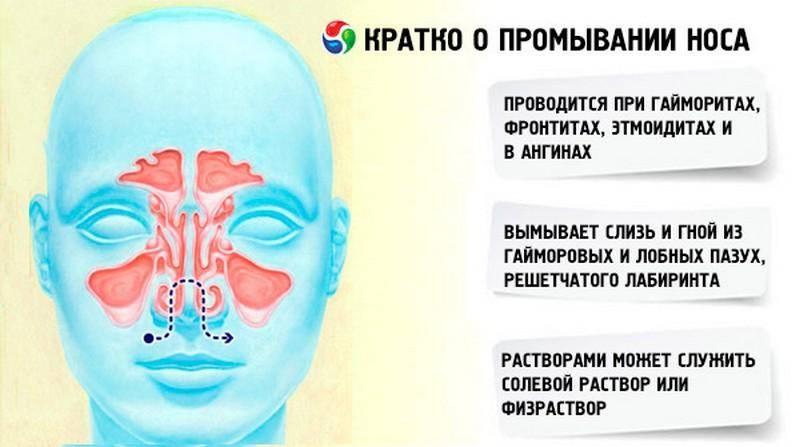 Чем промывать нос при гайморите - подборка хороших растворов