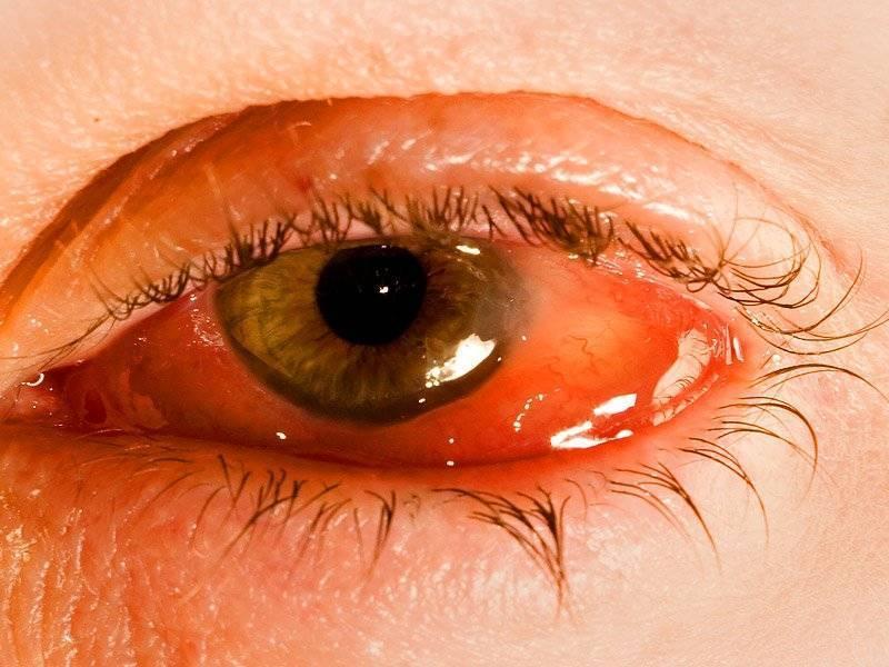Что такое вирусный конъюнктивит и как его лечить