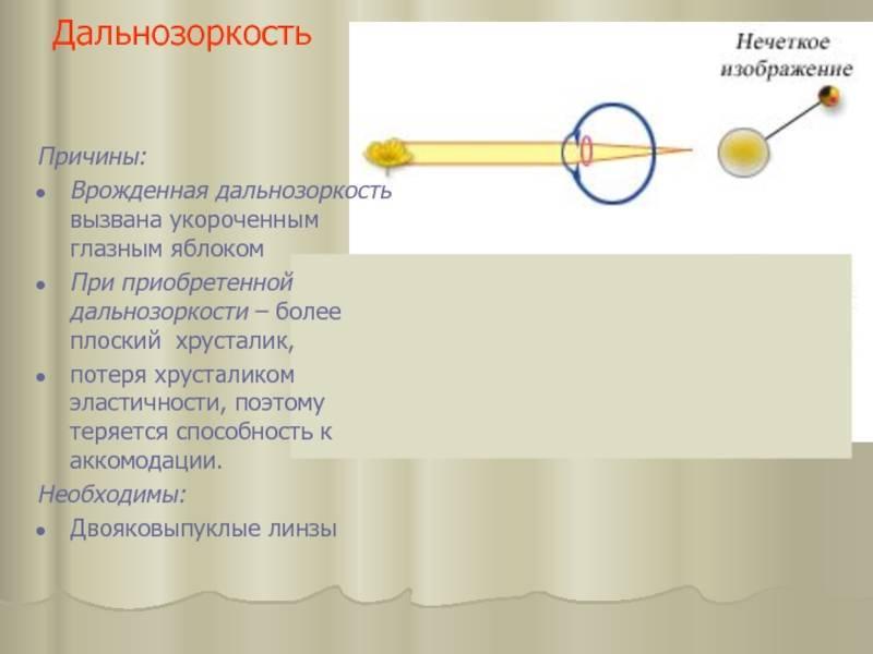 Дальнозоркость (гиперметропия). причины, виды, симптомы и признаки. диагностика, лечение, профилактика и осложнения