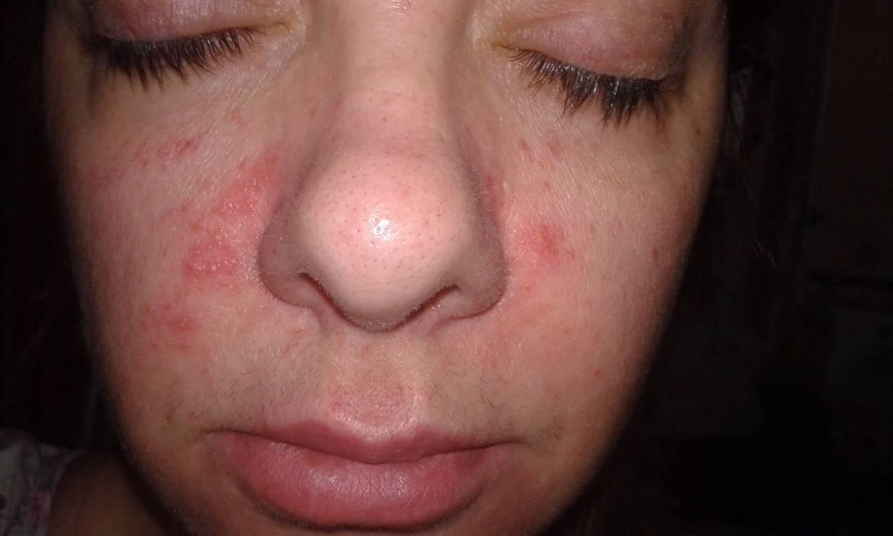 может ли дерматит пройти сам