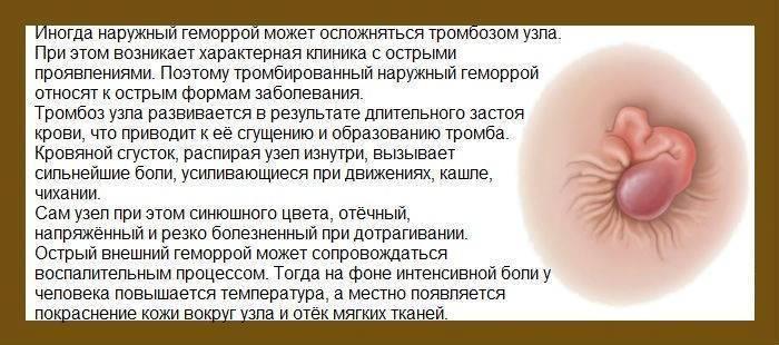 Лечение геморроя при беременности (у беременных женщин)
