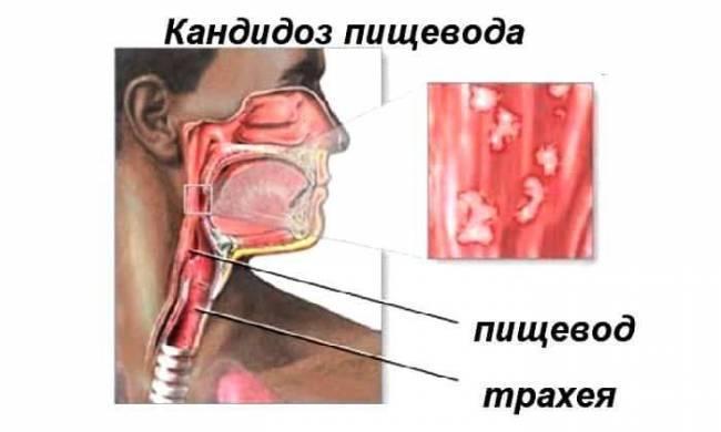 Кандидоз грибок в горле у кого был