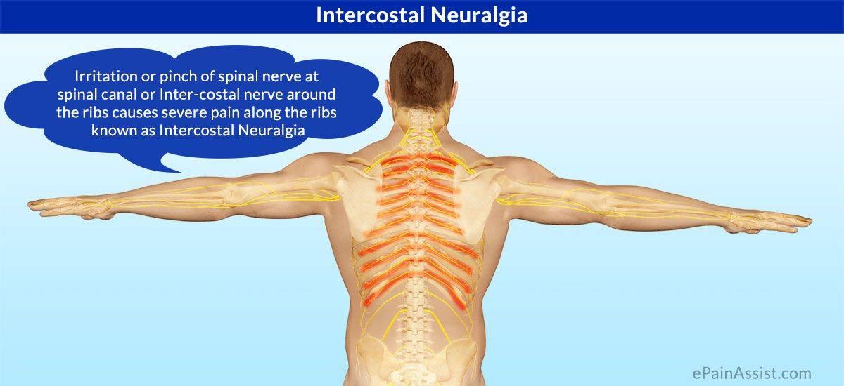 лечение межреберной невралгии слева