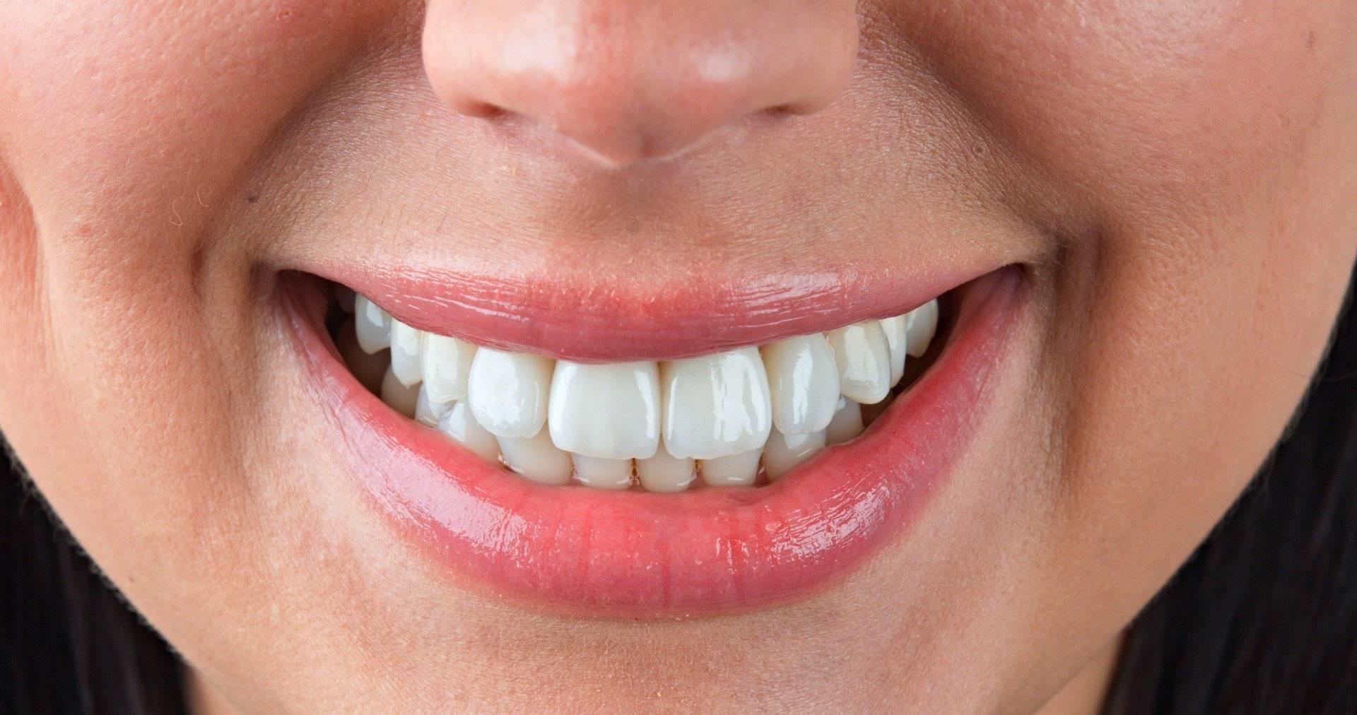 художественная реставрация кривых зубов