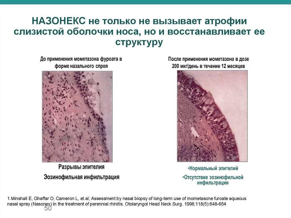атрофия слизистой носа симптомы и лечение
