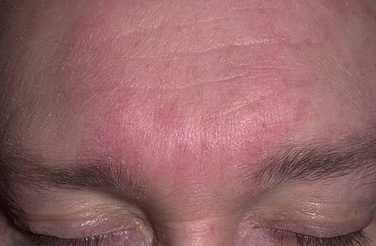 дерматит у женщин на лице