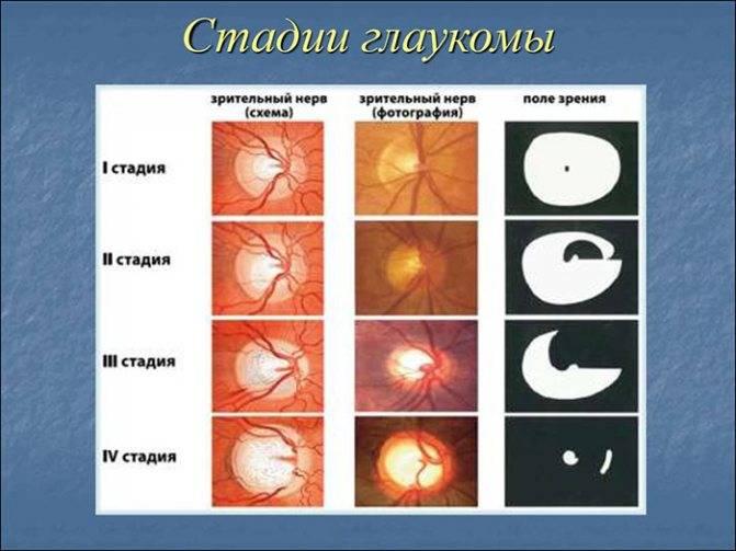 Глаукома - признаки, симптомы, лечение, стадии