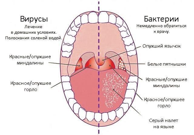 Сухость в горле: иммунолог о причинах, этиологии и лечении