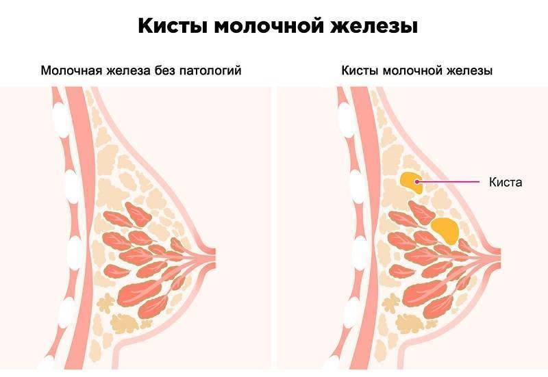 грудь набухла болят соски