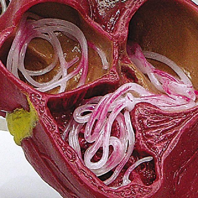 Симптомы и лечение глистов в легких