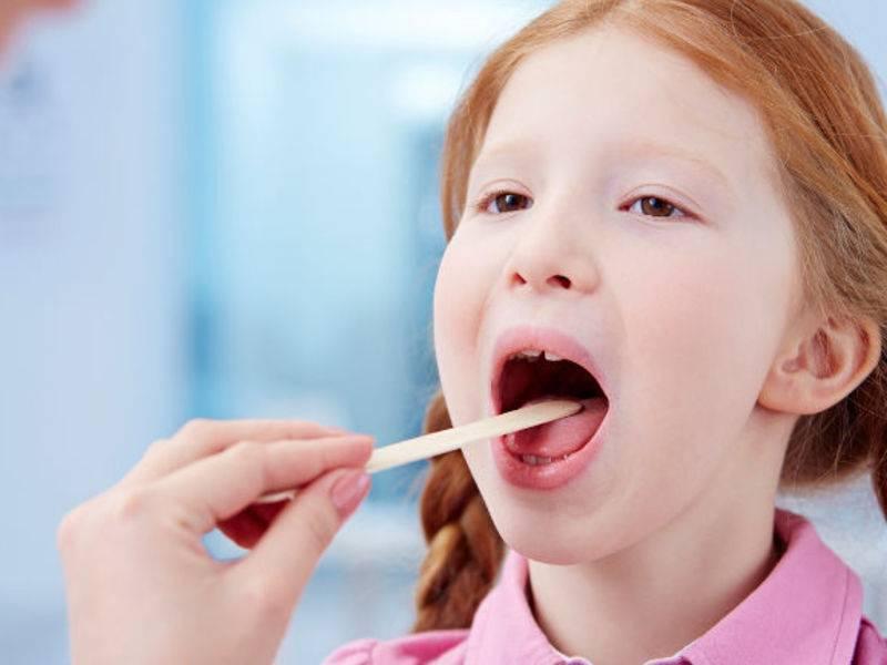Какой спрей— самый эффективный от ангины у ребёнка