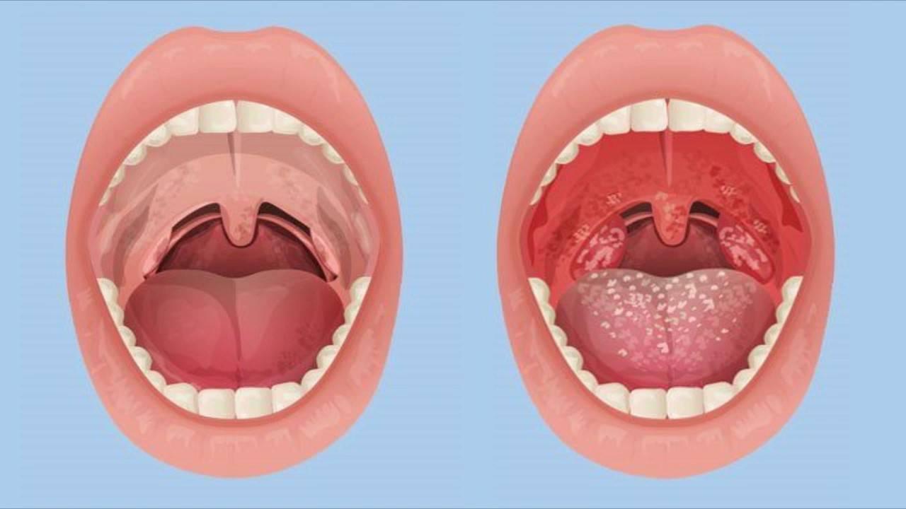 воспаление горло
