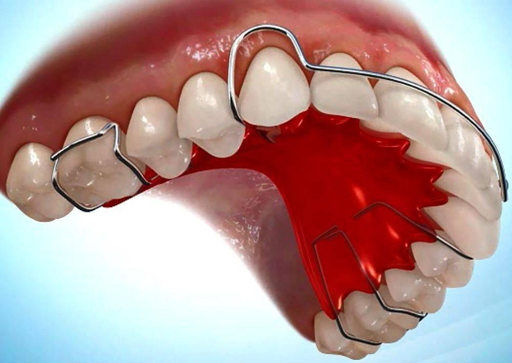 Ретейнер в стоматологии, что это такое, фото до и после, цены на системы