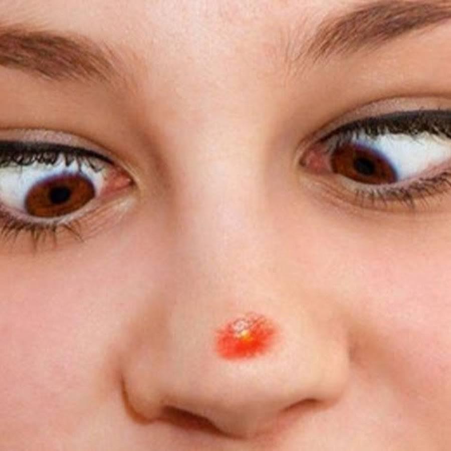 как вылечить герпес на носу