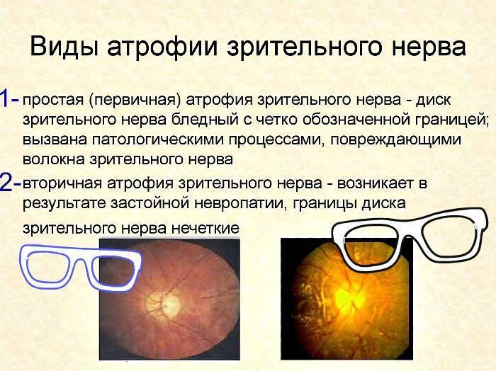 Что такое атрофия зрительного нерва у детей: виды и лечение