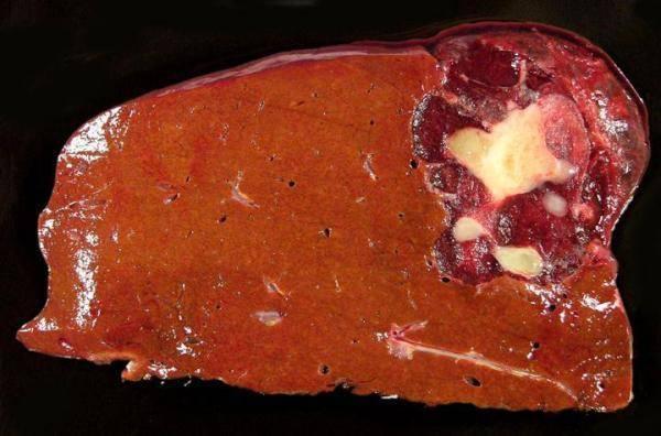 Гемангиома печени - виды, причины, симптомы, диагностика, лечение