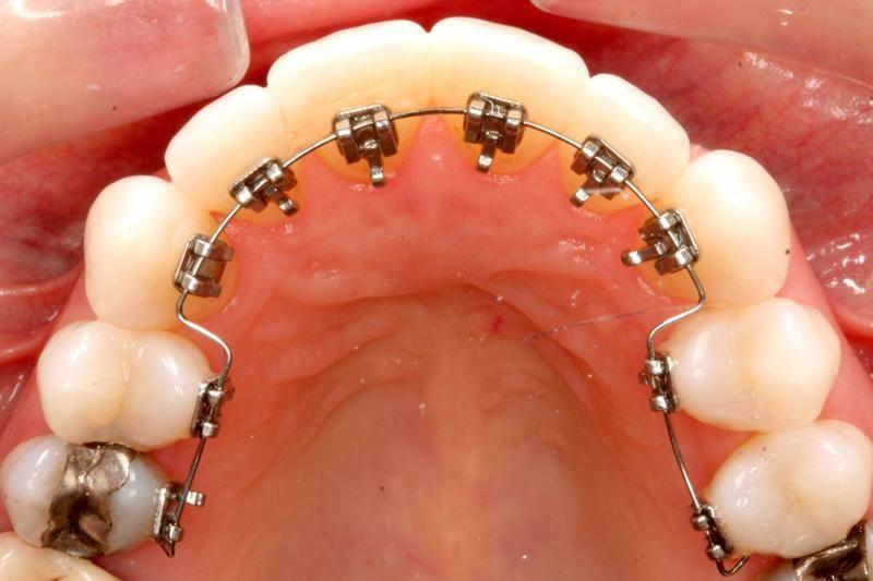 Лингвальные брекеты — невидимые конструкции с внутренней стороны зубов