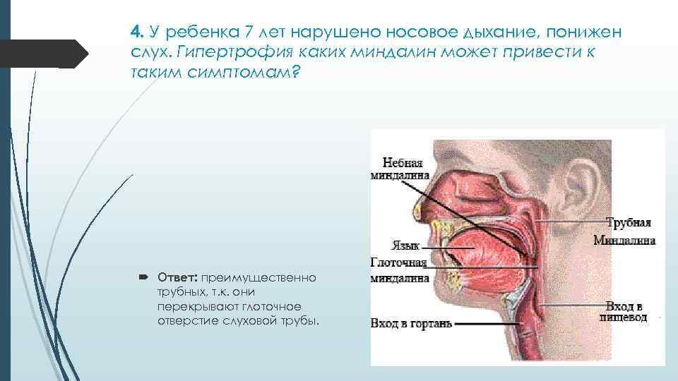 Воспаления миндалин в горле: причины, симптомы и варианты лечения в зависимости от возбудителя