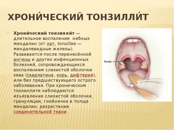 Методы эффективного лечения пробок и налета на миндалинах